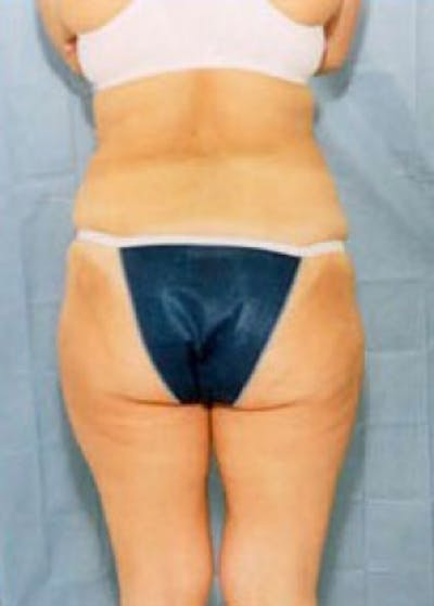 Liposuction and Smartlipo Gallery - Patient 5883372 - Image 2