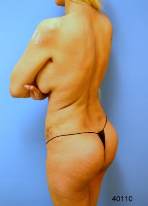 Buttocks Implants Gallery - Patient 5883373 - Image 2