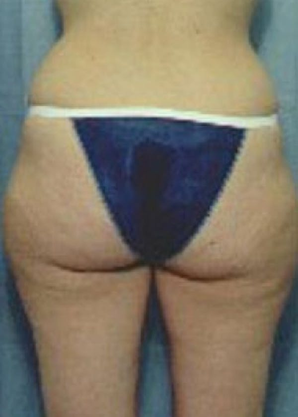 Liposuction and Smartlipo Gallery - Patient 5883375 - Image 1