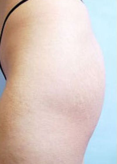 Buttocks Implants Gallery - Patient 5883374 - Image 1