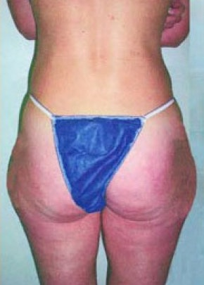 Liposuction and Smartlipo Gallery - Patient 5883377 - Image 1
