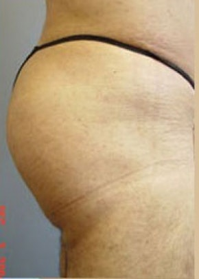 Buttocks Implants Gallery - Patient 5883376 - Image 2