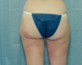 Liposuction and Smartlipo Gallery - Patient 5883384 - Image 1