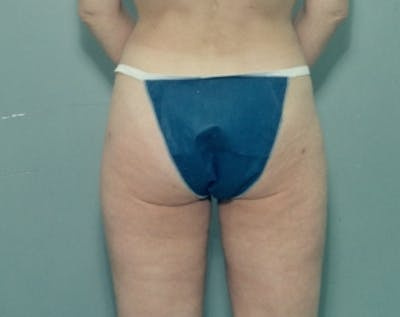 Liposuction and Smartlipo Gallery - Patient 5883384 - Image 46