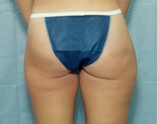 Liposuction and Smartlipo Gallery - Patient 5883386 - Image 1