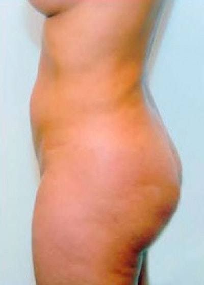 Buttocks Implants Gallery - Patient 5883385 - Image 2
