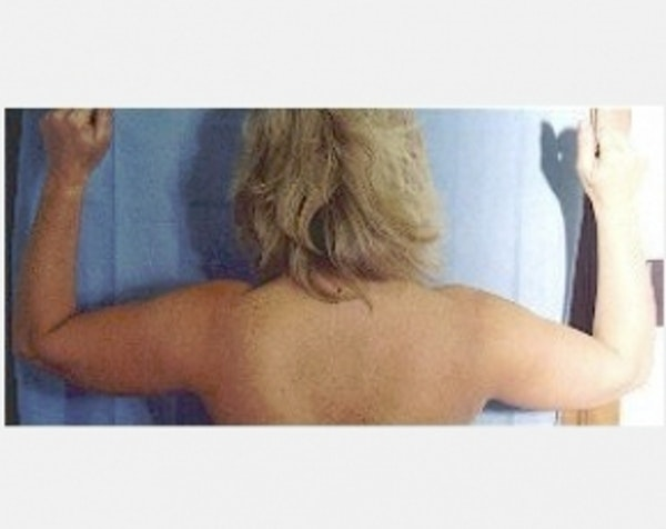 Liposuction and Smartlipo Gallery - Patient 5883388 - Image 1