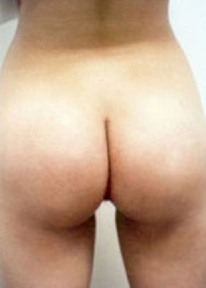 Buttocks Implants Gallery - Patient 5883387 - Image 2