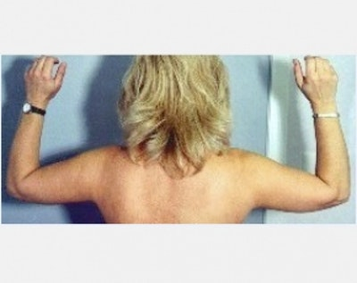 Liposuction and Smartlipo Gallery - Patient 5883388 - Image 2