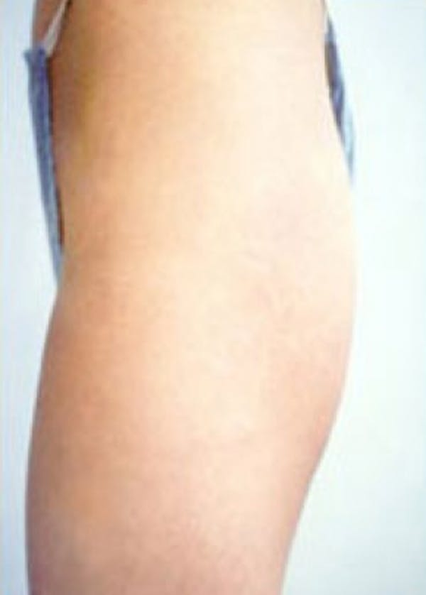 Buttocks Implants Gallery - Patient 5883390 - Image 1