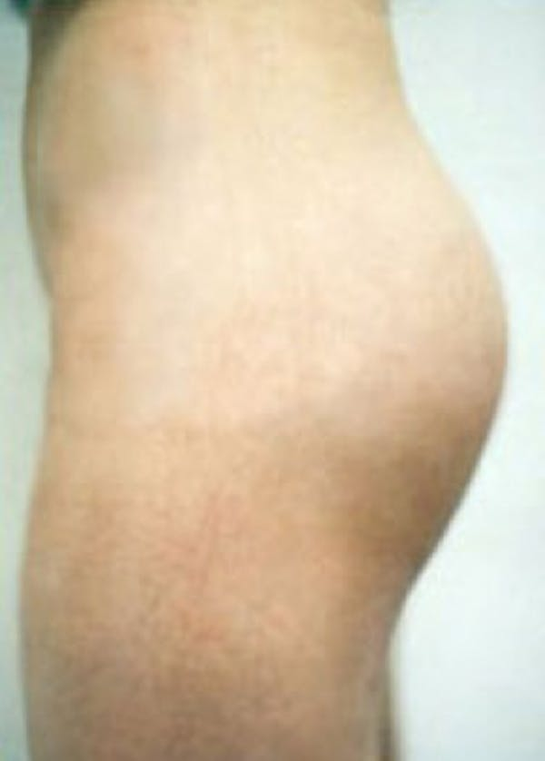 Buttocks Implants Gallery - Patient 5883390 - Image 2