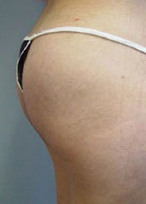 Buttocks Implants Gallery - Patient 5883392 - Image 2