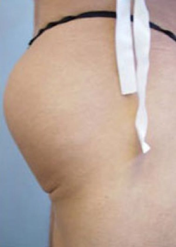 Buttocks Implants Gallery - Patient 5883394 - Image 2