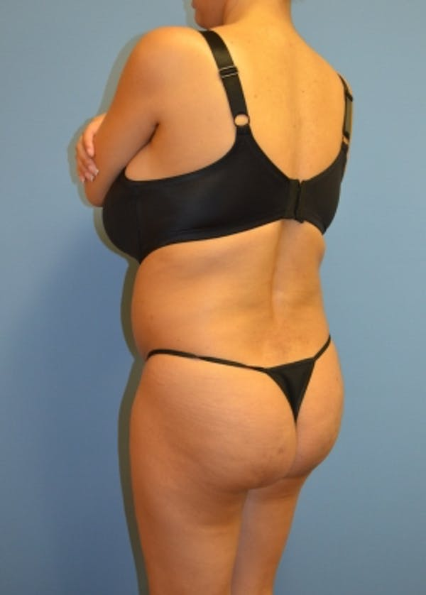 Brazilian Butt Lift Gallery - Patient 5883402 - Image 1