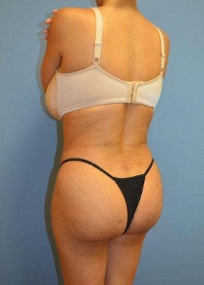 Brazilian Butt Lift Gallery - Patient 5883402 - Image 2