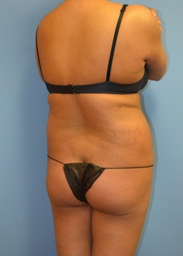 Brazilian Butt Lift Gallery - Patient 5883403 - Image 1