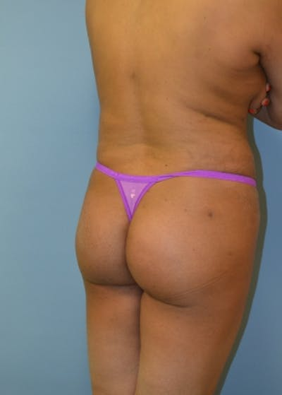 Brazilian Butt Lift Gallery - Patient 5883403 - Image 2