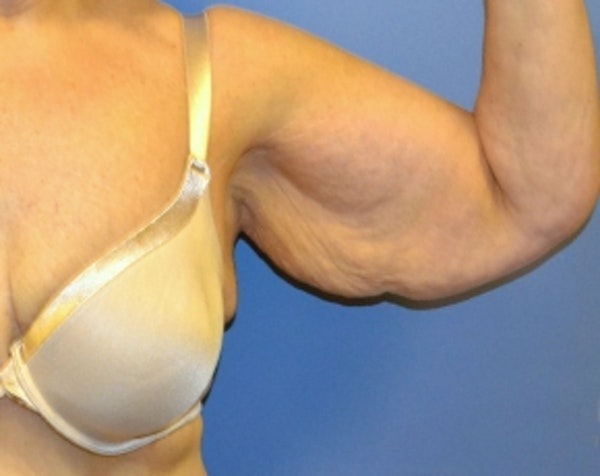 Arm Lift Gallery - Patient 5883406 - Image 1