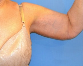 Arm Lift Gallery - Patient 5883406 - Image 2