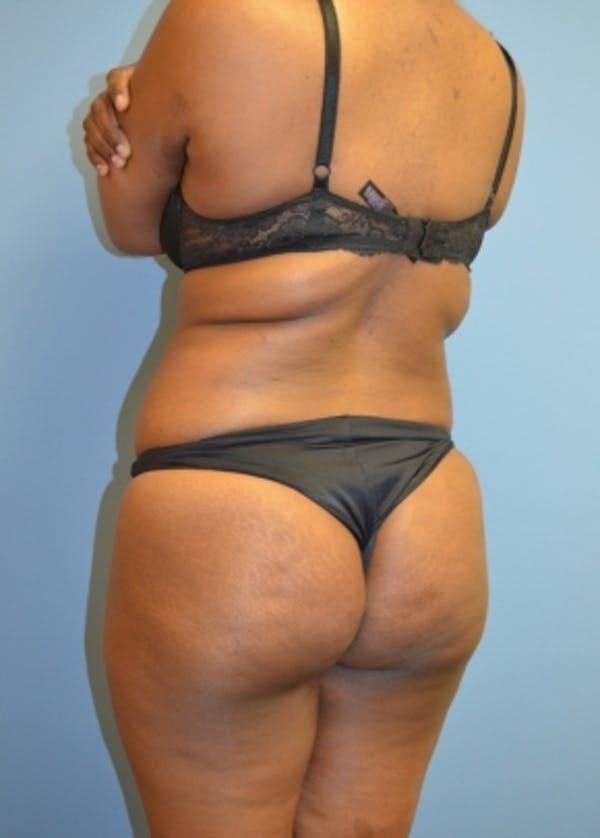 Brazilian Butt Lift Gallery - Patient 5883411 - Image 1