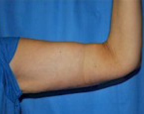 Arm Lift Gallery - Patient 5883410 - Image 2