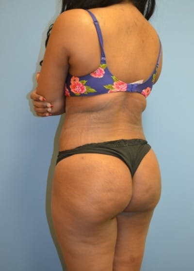 Brazilian Butt Lift Gallery - Patient 5883411 - Image 2