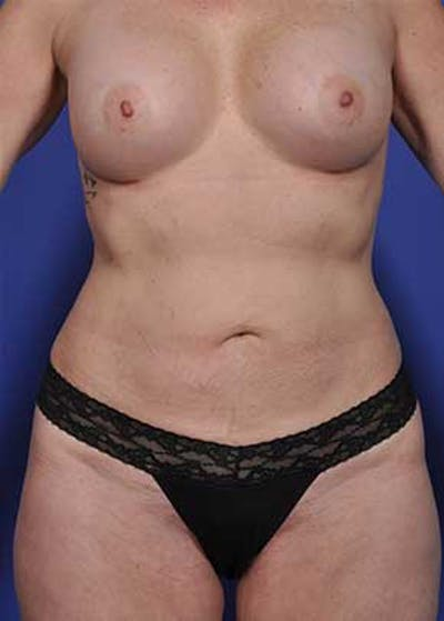 Mommy Makeover Gallery - Patient 5883412 - Image 2