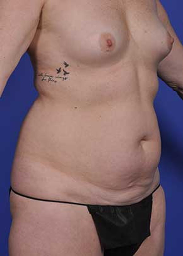 Mommy Makeover Gallery - Patient 5883412 - Image 3