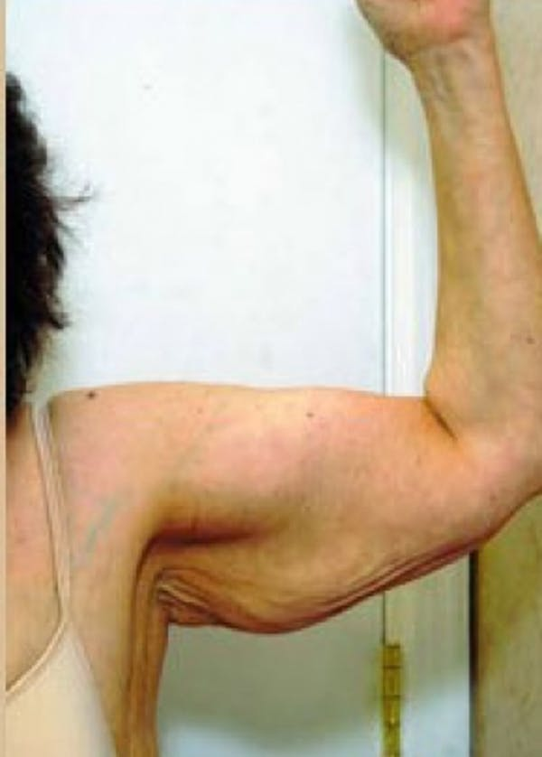 Arm Lift Gallery - Patient 5883413 - Image 1