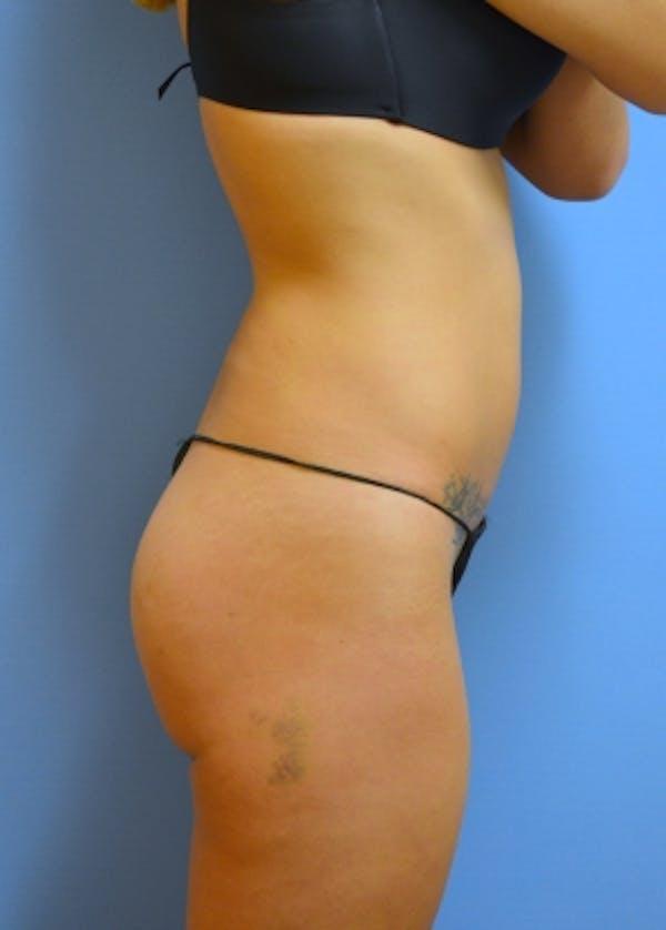 Brazilian Butt Lift Gallery - Patient 5883414 - Image 1