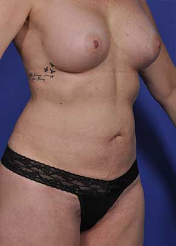 Mommy Makeover Gallery - Patient 5883412 - Image 4