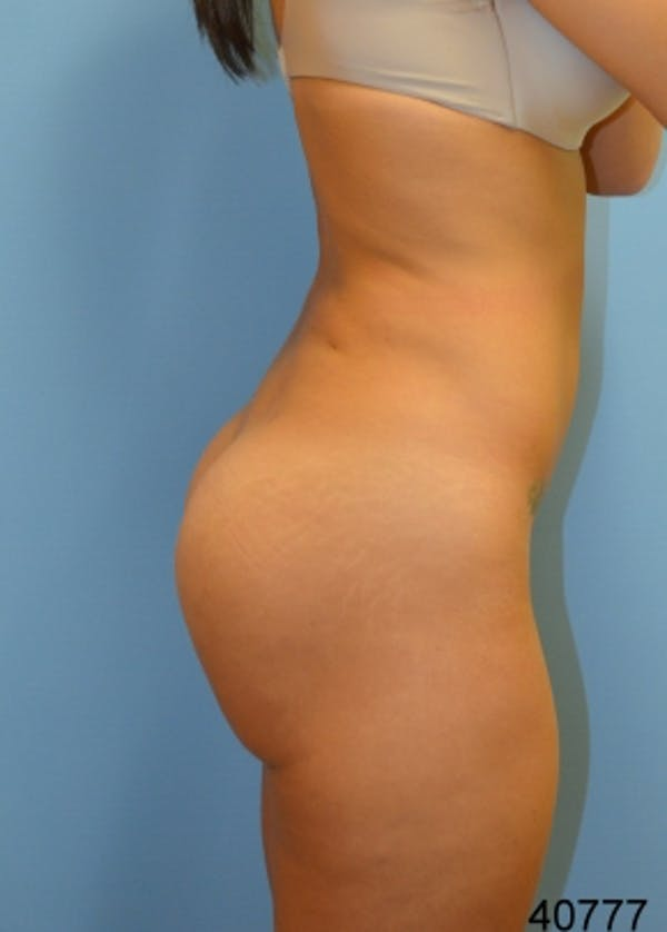 Brazilian Butt Lift Gallery - Patient 5883414 - Image 2