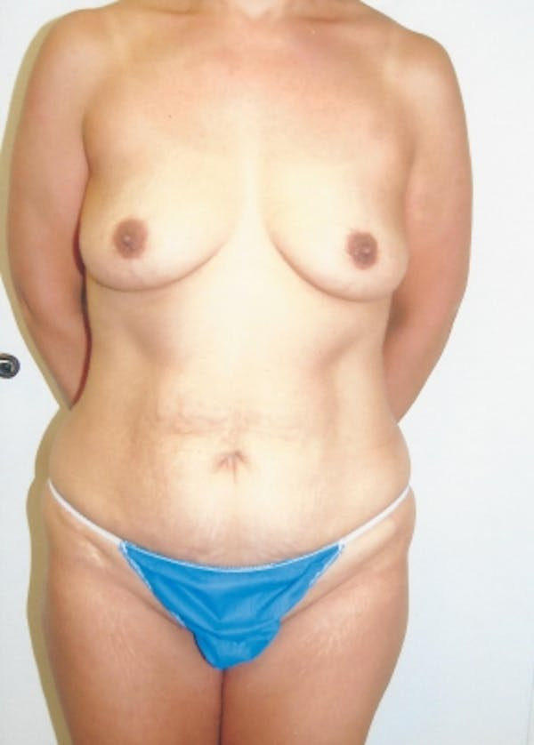 Mommy Makeover Gallery - Patient 5883415 - Image 1