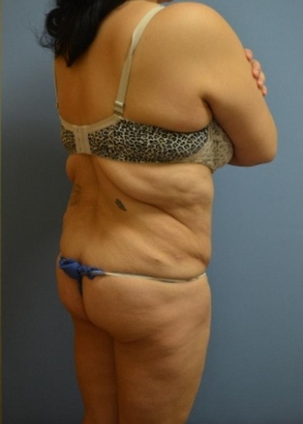 Brazilian Butt Lift Gallery - Patient 5883417 - Image 1