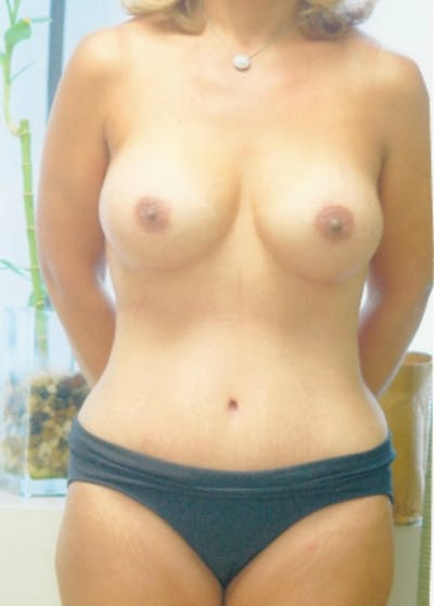 Mommy Makeover Gallery - Patient 5883415 - Image 2