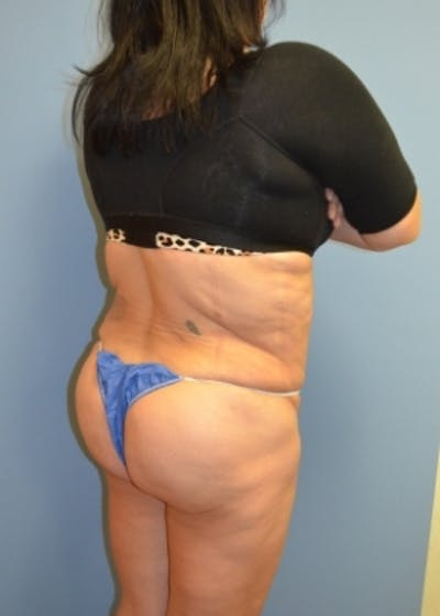 Brazilian Butt Lift Gallery - Patient 5883417 - Image 6