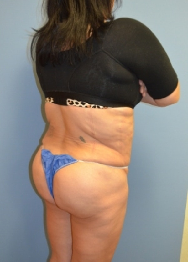 Brazilian Butt Lift Gallery - Patient 5883417 - Image 2