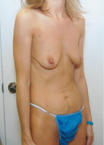 Mommy Makeover Gallery - Patient 5883418 - Image 1
