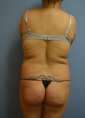 Brazilian Butt Lift Gallery - Patient 5883419 - Image 1