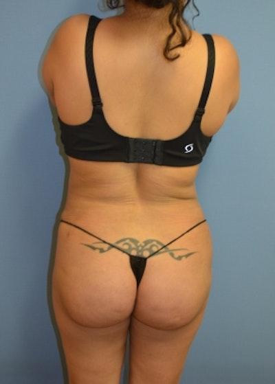 Brazilian Butt Lift Gallery - Patient 5883419 - Image 2