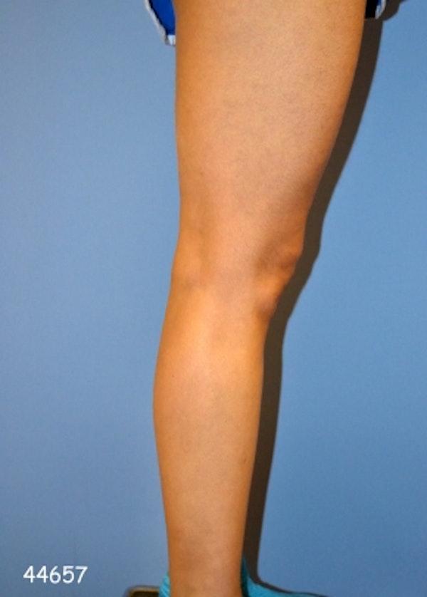 Implants for Bodybuilding Gallery - Patient 5883421 - Image 1