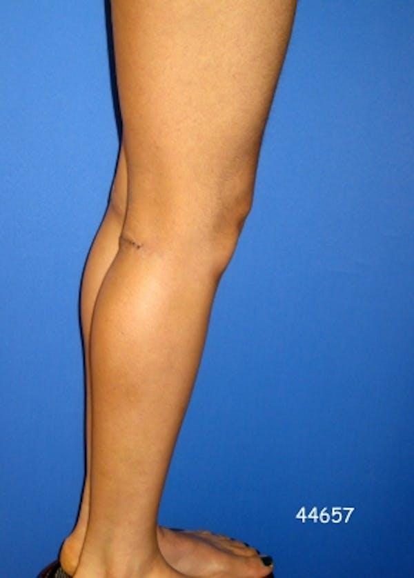 Implants for Bodybuilding Gallery - Patient 5883421 - Image 2