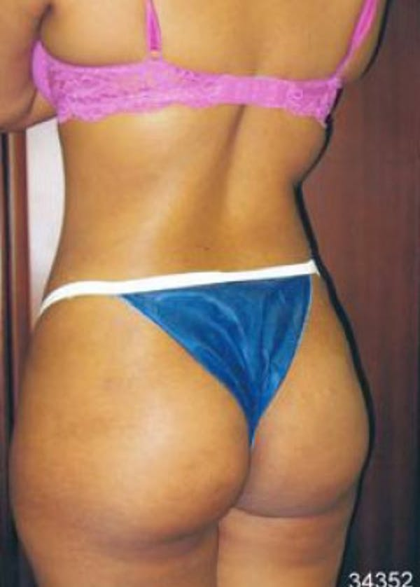 Brazilian Butt Lift Gallery - Patient 5883422 - Image 2
