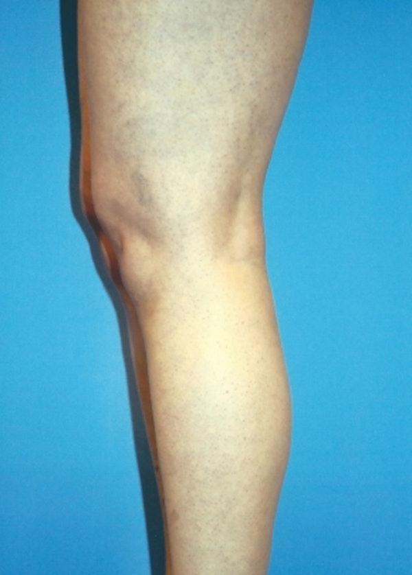 Implants for Bodybuilding Gallery - Patient 5883423 - Image 1