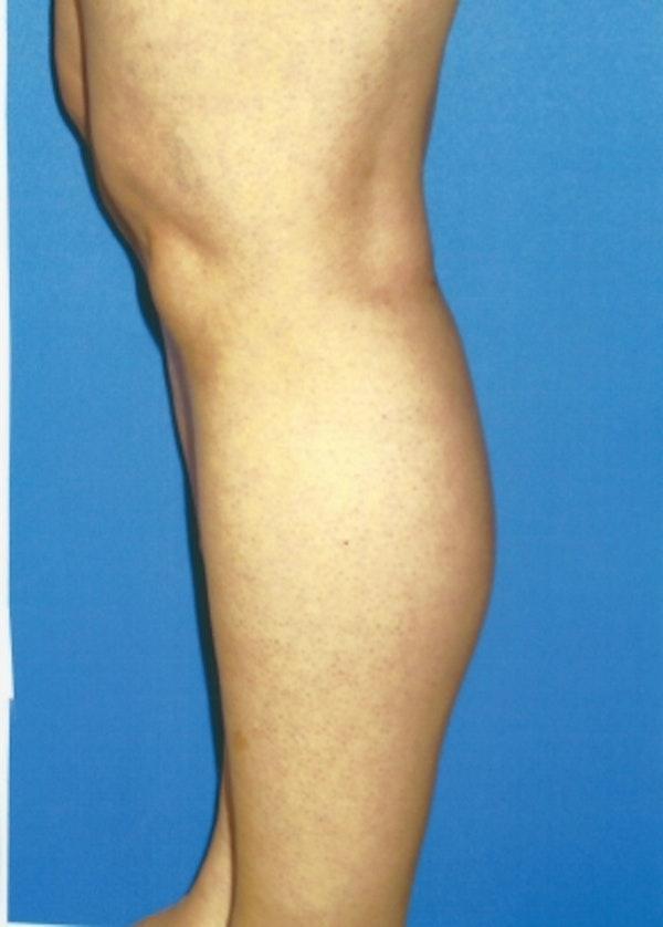 Implants for Bodybuilding Gallery - Patient 5883423 - Image 2