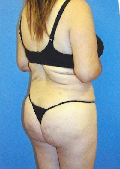 Brazilian Butt Lift Gallery - Patient 5883424 - Image 2