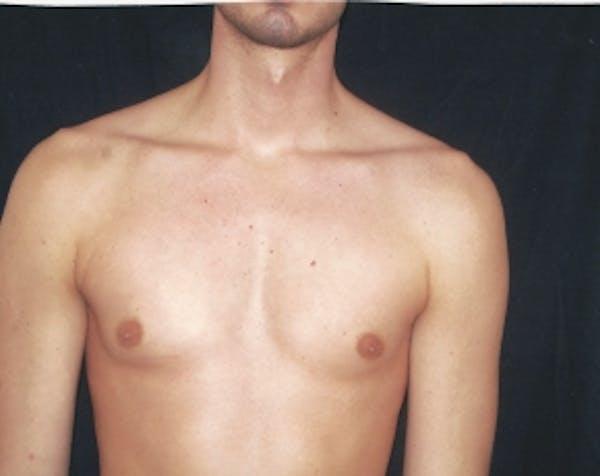 Implants for Bodybuilding Gallery - Patient 5883426 - Image 1