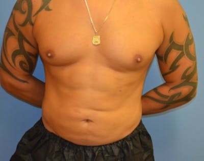 Abdominal Etching Gallery - Patient 5883425 - Image 1