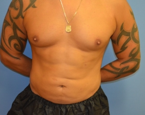 Abdominal Etching Gallery - Patient 5883425 - Image 2