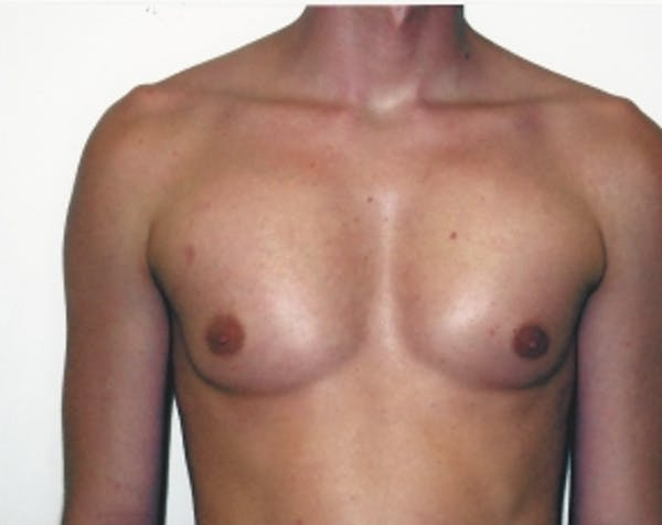 Implants for Bodybuilding Gallery - Patient 5883426 - Image 2